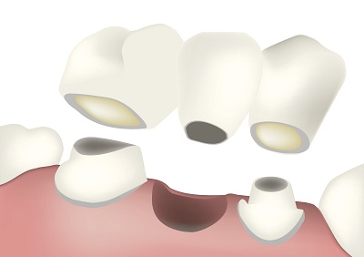 Diagram of a dental bridge from dentist in West Hollywood, CA.